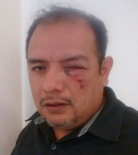 GABINO RIVERA ESCALONA PRD AGRESION